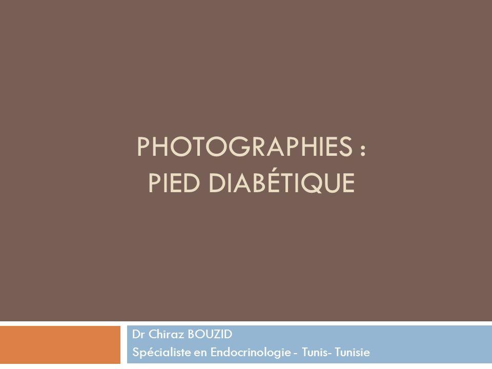 PHOTOGRAPHIES : PIED DIABÉTIQUE Dr Chiraz BOUZID Spécialiste en Endocrinologie - Tunis- Tunisie