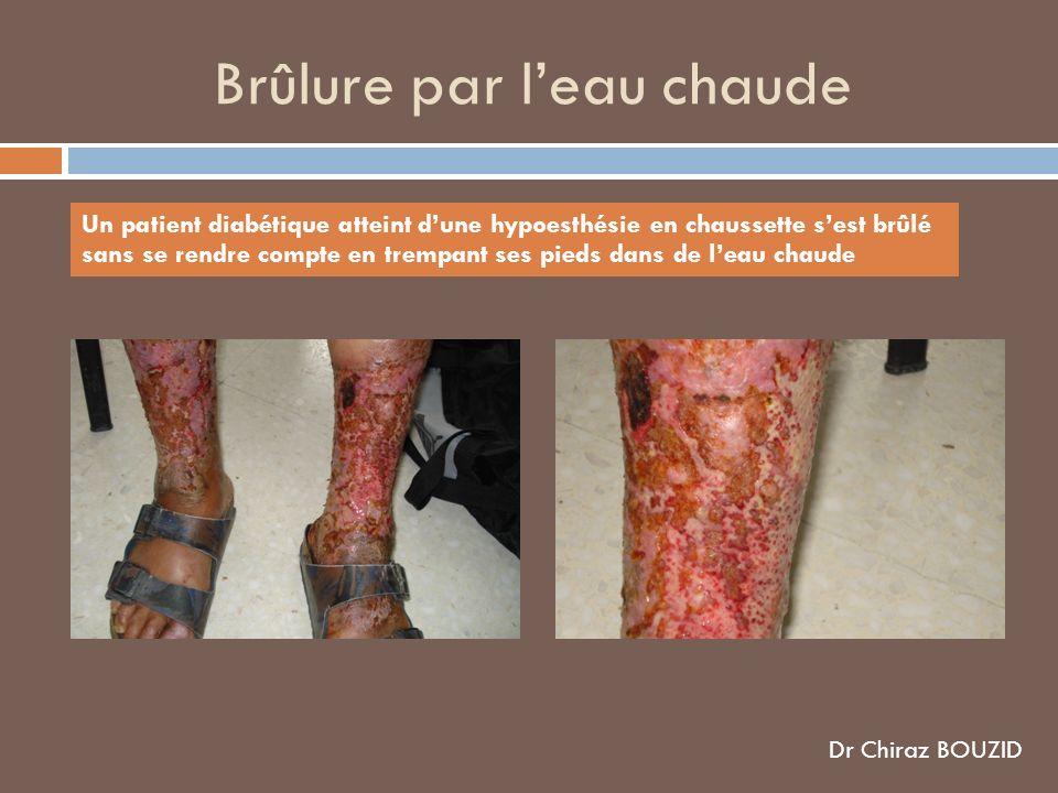 Brûlure par leau chaude Un patient diabétique atteint dune hypoesthésie en chaussette sest brûlé sans se rendre compte en trempant ses pieds dans de leau chaude Dr Chiraz BOUZID