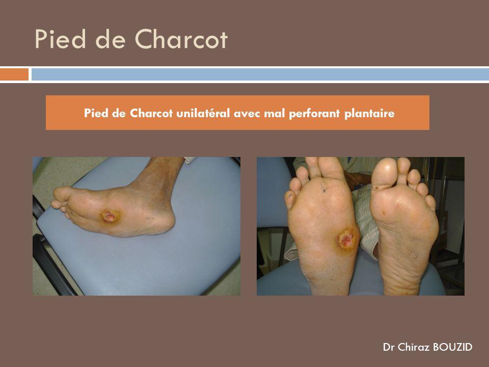 Pied de Charcot Pied de Charcot unilatéral avec mal perforant plantaire Dr Chiraz BOUZID
