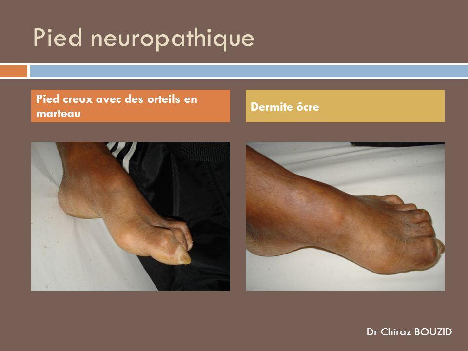 Pied neuropathique Pied creux avec des orteils en marteau Dermite ôcre Dr Chiraz BOUZID