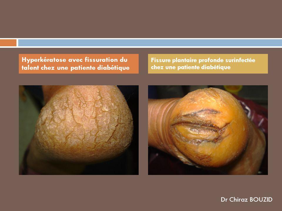 Hyperkératose avec fissuration du talent chez une patiente diabétique Fissure plantaire profonde surinfectée chez une patiente diabétique Dr Chiraz BO