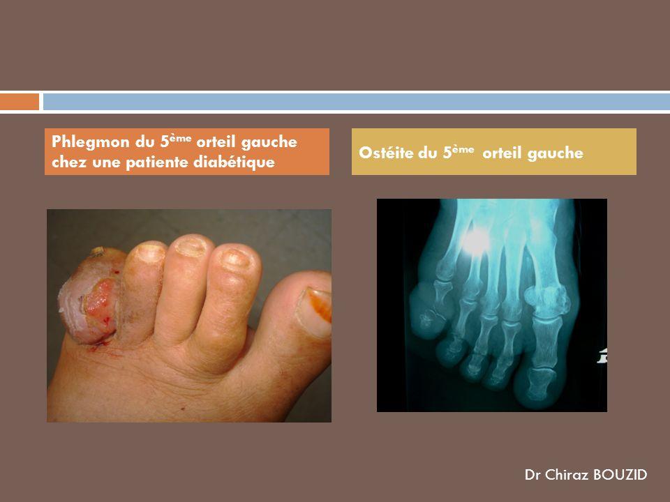 Phlegmon du 5 ème orteil gauche chez une patiente diabétique Ostéite du 5 ème orteil gauche Dr Chiraz BOUZID