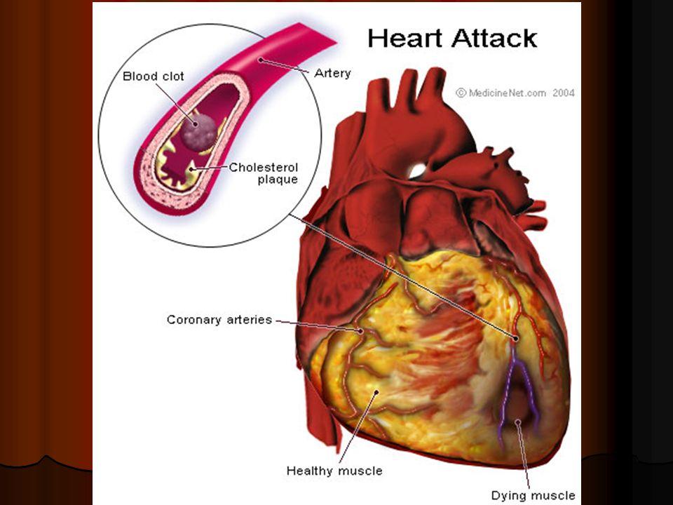 Voici un excellent article qui vous parle de crise cardiaque...