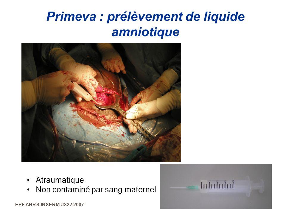 EPF ANRS-INSERM U822 2007 Primeva : prélèvement de liquide amniotique Atraumatique Non contaminé par sang maternel