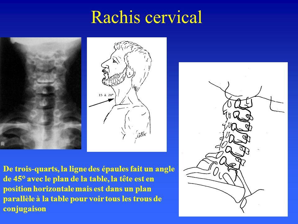 Rachis cervical De trois-quarts, la ligne des épaules fait un angle de 45° avec le plan de la table, la tête est en position horizontale mais est dans un plan parallèle à la table pour voir tous les trous de conjugaison
