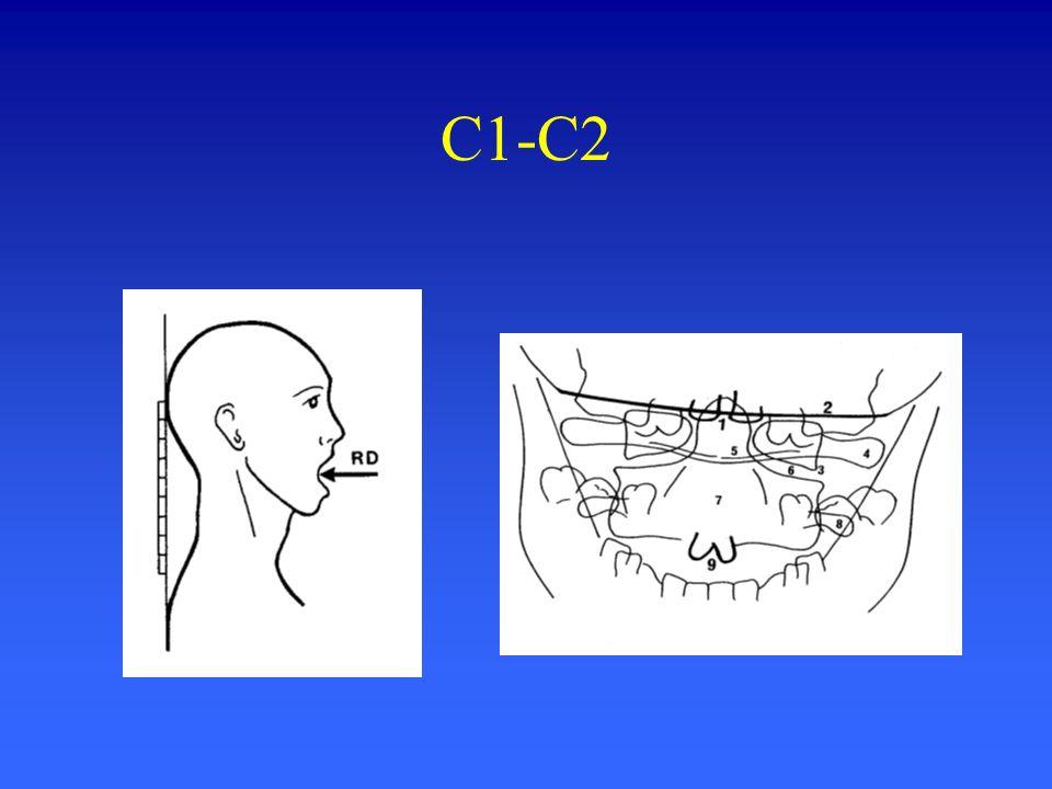 C1-C2