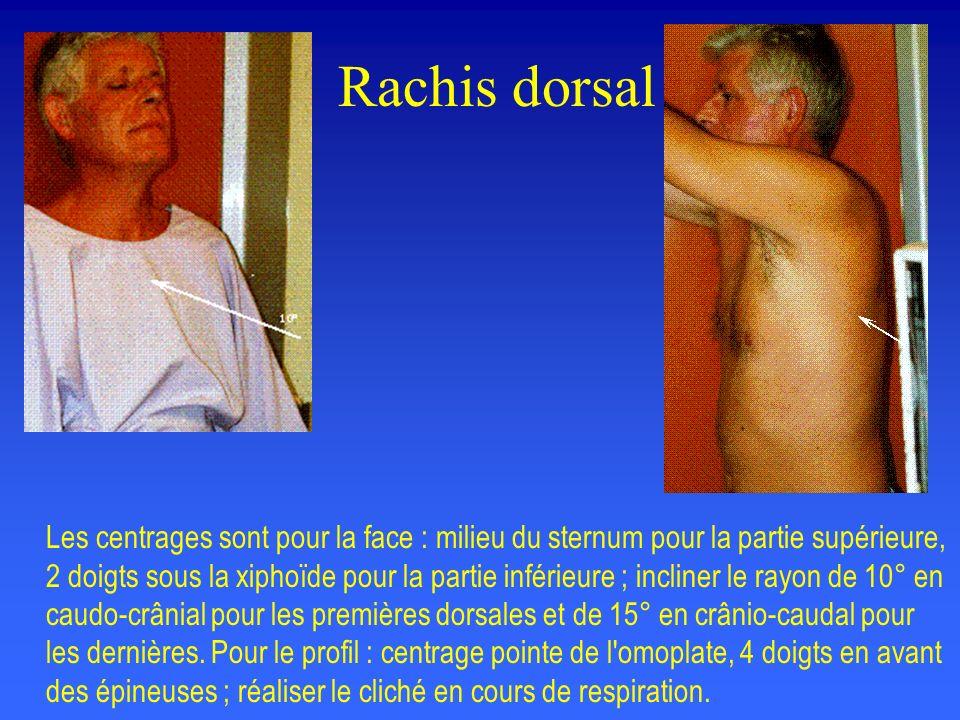 Rachis lombaire De Sèze : le patient est debout, pieds nus en appui symétrique, la table en légère bascule pour assurer une auto compression.