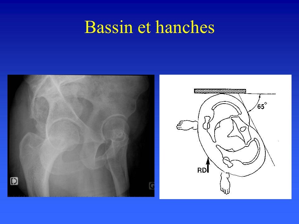 Faux profil de hanche