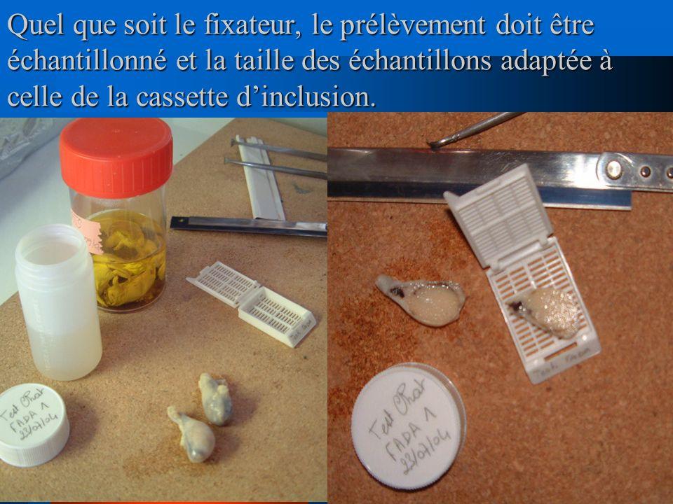Quel que soit le fixateur, le prélèvement doit être échantillonné et la taille des échantillons adaptée à celle de la cassette dinclusion.