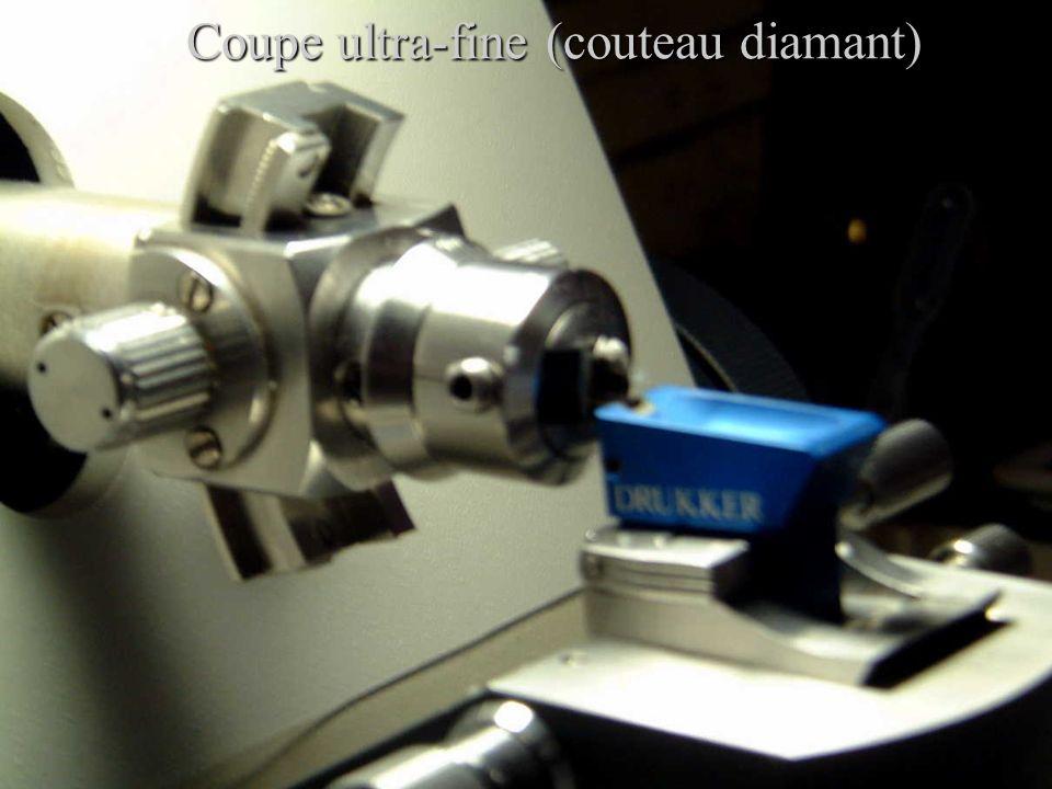 Coupe ultra-fine (couteau diamant)