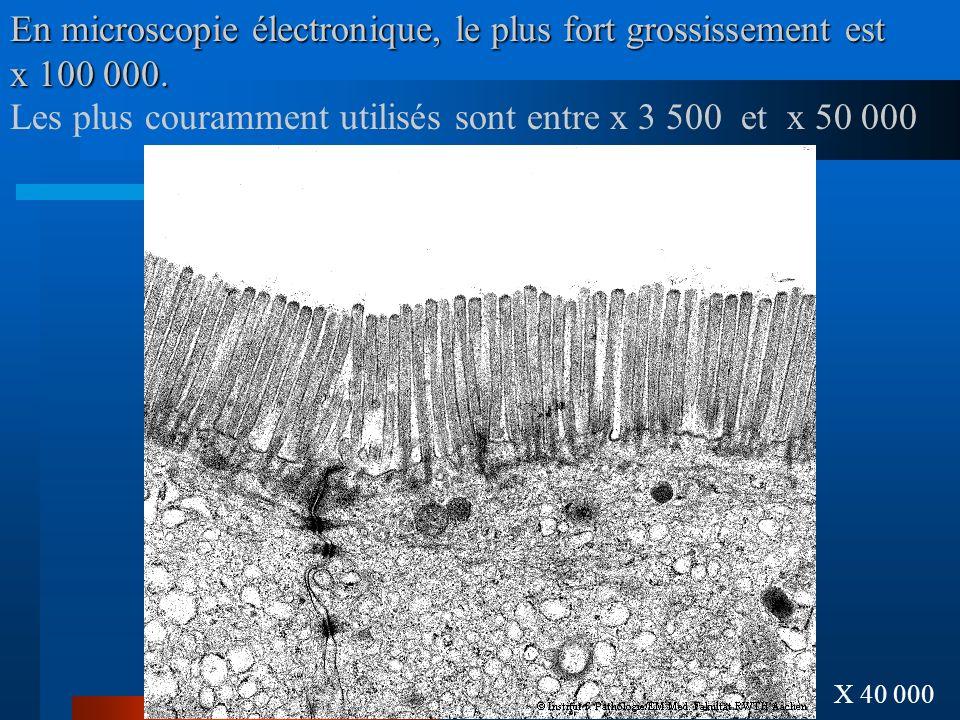 En microscopie électronique, le plus fort grossissement est x 100 000. X 40 000 Les plus couramment utilisés sont entre x 3 500 et x 50 000