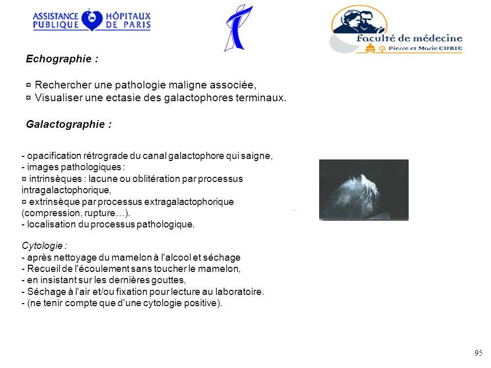 Echographie : ¤ Rechercher une pathologie maligne associée, ¤ Visualiser une ectasie des galactophores terminaux. Galactographie : - opacification rét