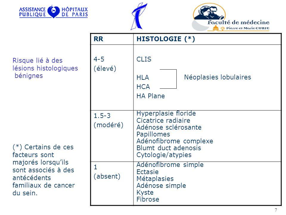 RRHISTOLOGIE (*) 4-5 (élevé) CLIS HLA HCA HA Plane 1.5-3 (modéré) Hyperplasie floride Cicatrice radiaire Adénose sclérosante Papillomes Adénofibrome c