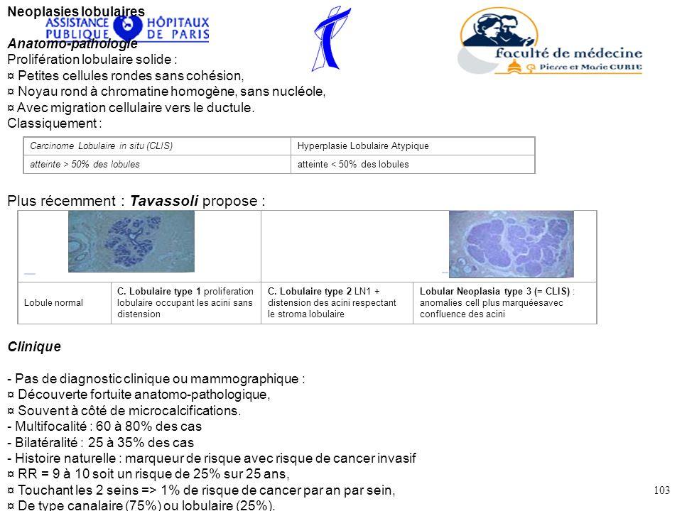 Neoplasies lobulaires Anatomo-pathologie Prolifération lobulaire solide : ¤ Petites cellules rondes sans cohésion, ¤ Noyau rond à chromatine homogène,