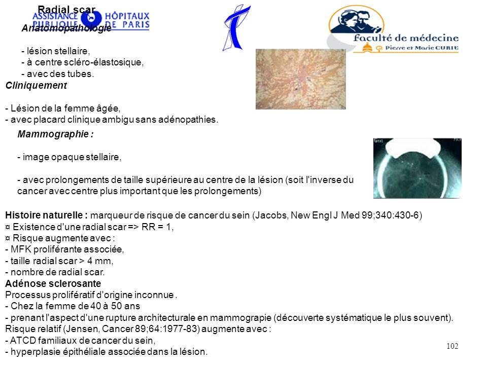 Radial scar Anatomopathologie - lésion stellaire, - à centre scléro-élastosique, - avec des tubes. Cliniquement - Lésion de la femme âgée, - avec plac