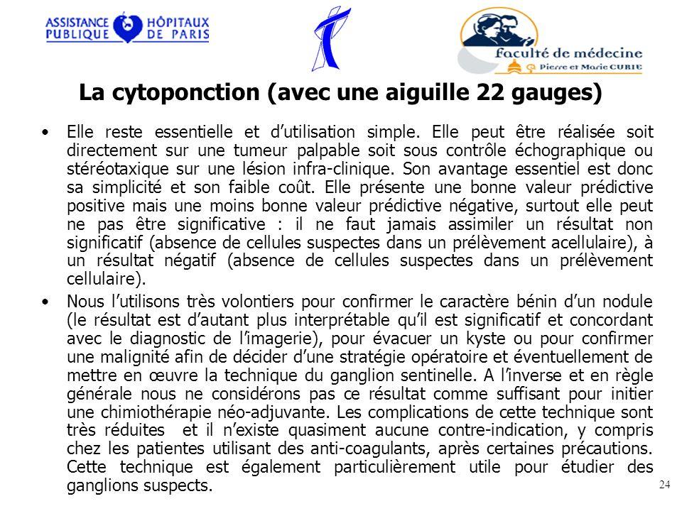 La cytoponction (avec une aiguille 22 gauges) Elle reste essentielle et dutilisation simple. Elle peut être réalisée soit directement sur une tumeur p