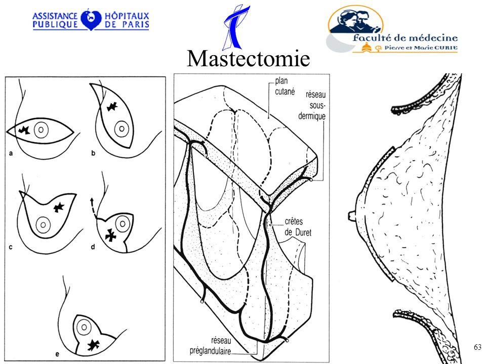 Mastectomie 63