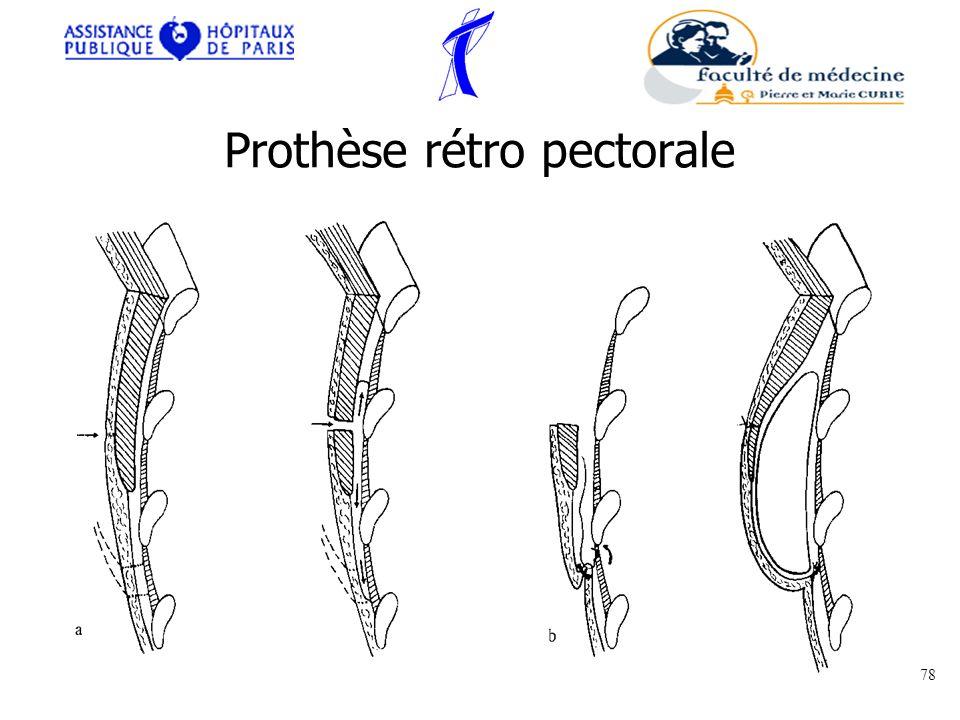 Prothèse rétro pectorale 78