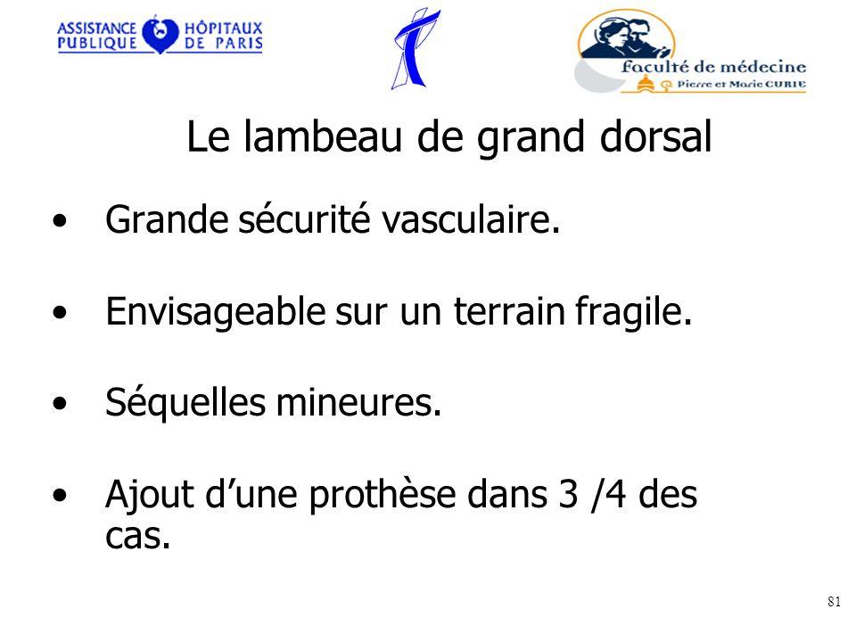 Le lambeau de grand dorsal Grande sécurité vasculaire. Envisageable sur un terrain fragile. Séquelles mineures. Ajout dune prothèse dans 3 /4 des cas.