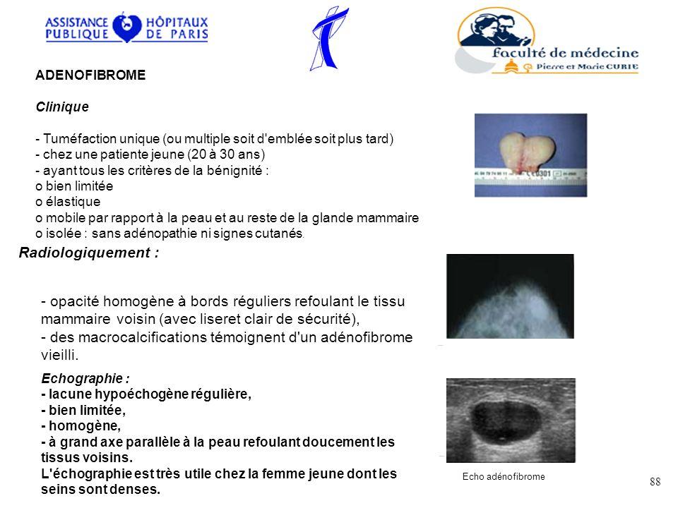 ADENOFIBROME Clinique - Tuméfaction unique (ou multiple soit d'emblée soit plus tard) - chez une patiente jeune (20 à 30 ans) - ayant tous les critère