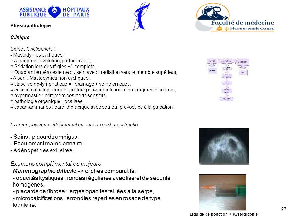 Physiopathologie Clinique Signes fonctionnels : - Mastodynies cycliques : ¤ A partir de l'ovulation, parfois avant, ¤ Sédation lors des règles +/- com