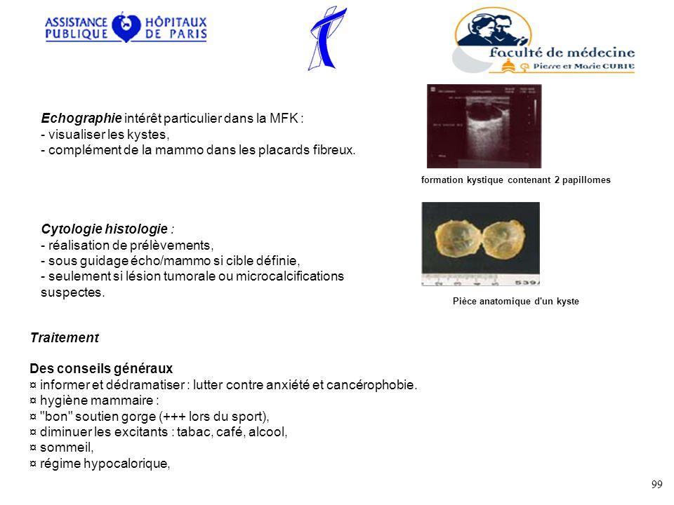 Echographie intérêt particulier dans la MFK : - visualiser les kystes, - complément de la mammo dans les placards fibreux. formation kystique contenan
