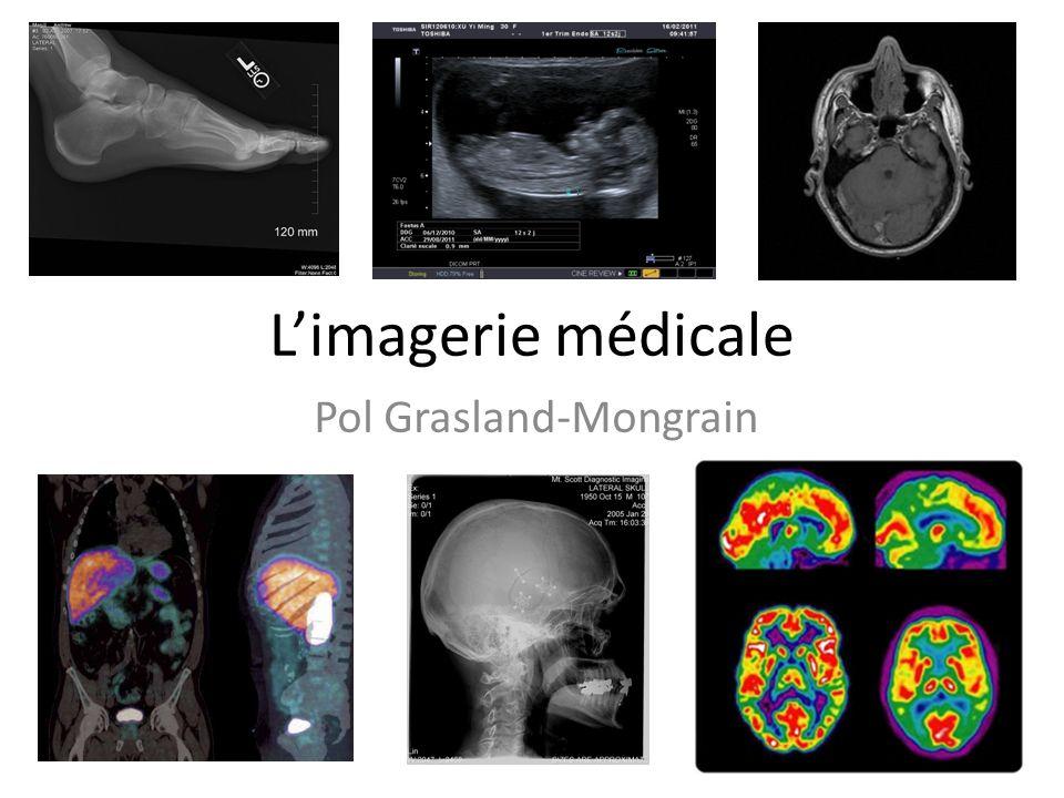 Limagerie médicale Pol Grasland-Mongrain
