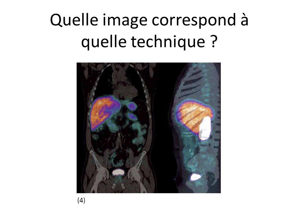 Quelle image correspond à quelle technique ? (4)
