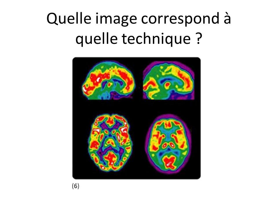Quelle image correspond à quelle technique ? (6)