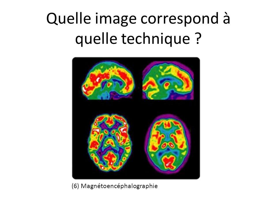 Quelle image correspond à quelle technique ? (6) Magnétoencéphalographie
