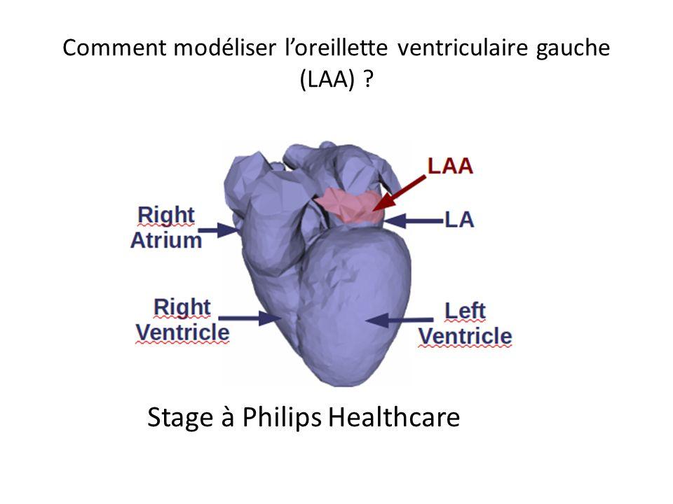 Comment modéliser loreillette ventriculaire gauche (LAA) ? Stage à Philips Healthcare