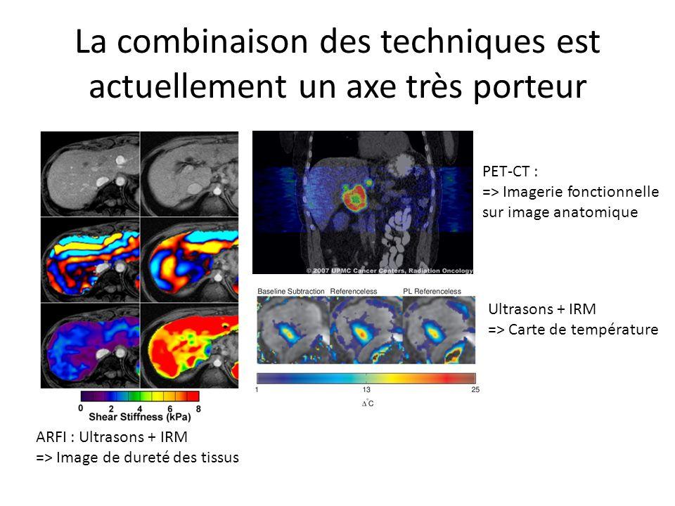 La combinaison des techniques est actuellement un axe très porteur ARFI : Ultrasons + IRM => Image de dureté des tissus PET-CT : => Imagerie fonctionnelle sur image anatomique Ultrasons + IRM => Carte de température