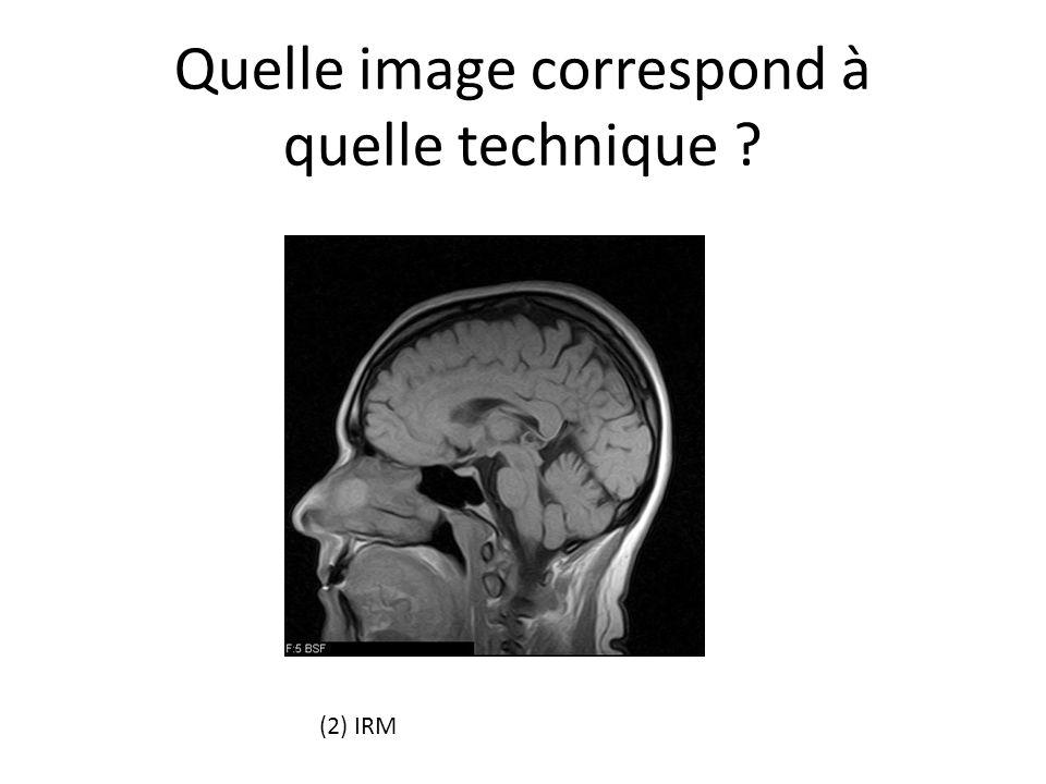 Quelle image correspond à quelle technique ? (2) IRM