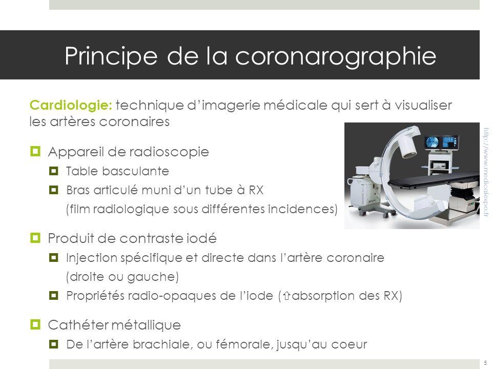 Principe de la coronarographie Cardiologie: technique dimagerie médicale qui sert à visualiser les artères coronaires Appareil de radioscopie Table ba