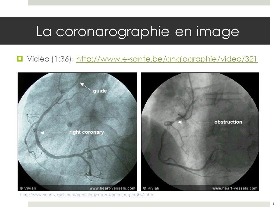 La coronarographie en image Vidéo (1:36): http://www.e-sante.be/angiographie/video/321http://www.e-sante.be/angiographie/video/321 6 http://www.heart-