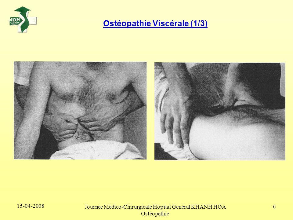 15-04-2008 Journée Médico-Chirurgicale Hôpital Général KHANH HOA Ostéopathie 6 Ostéopathie Viscérale (1/3)
