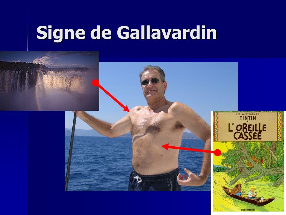 Signe de Gallavardin