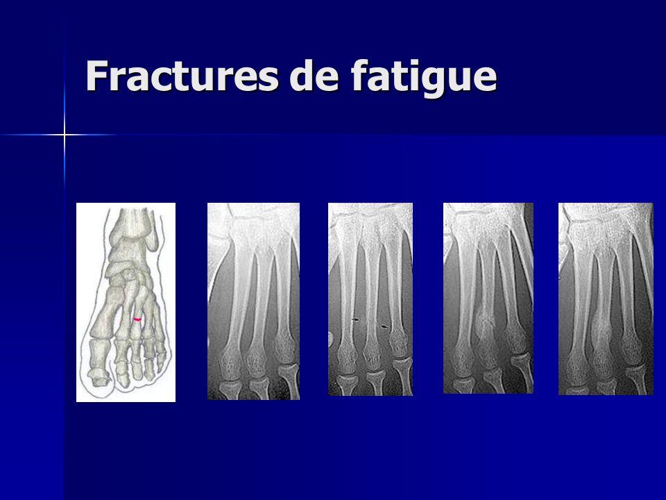 Fractures de fatigue