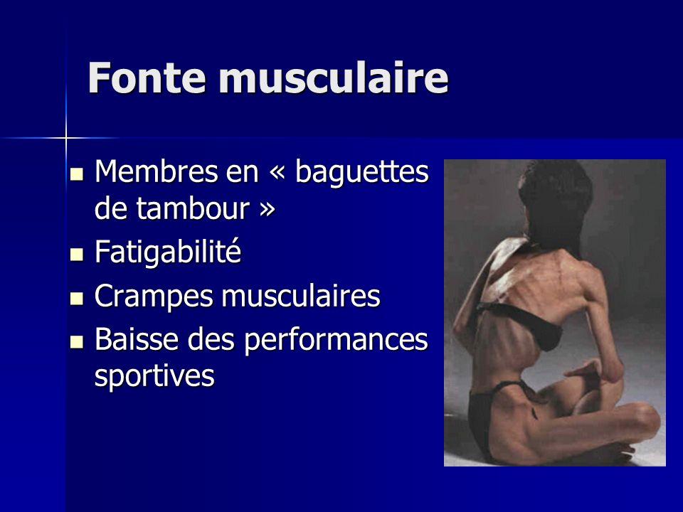 Fonte musculaire Membres en « baguettes de tambour » Membres en « baguettes de tambour » Fatigabilité Fatigabilité Crampes musculaires Crampes muscula