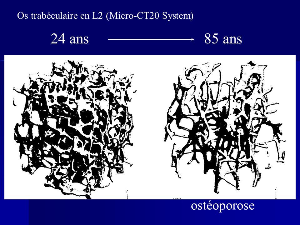 85 ans24 ans Os trabéculaire en L2 (Micro-CT20 System) ostéoporose