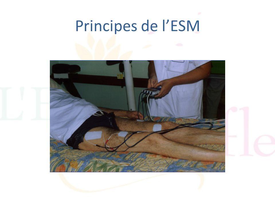Principes de lESM