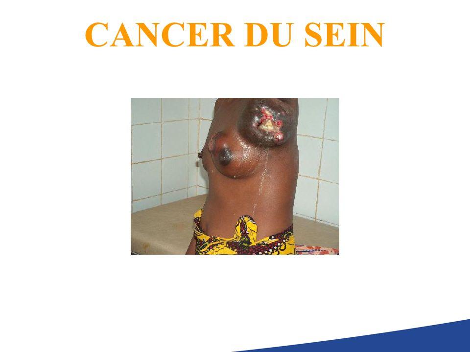 DIAGNOSTIC POSITIF Examens classiques Examen clinique: 60% de présomption (tumeur> 1 cm) Mammographie,numérisée 80% de présomption (tumeur> 5 mm) Examen clinique + mammographie 90% de présomption Échographie, doppler IRM