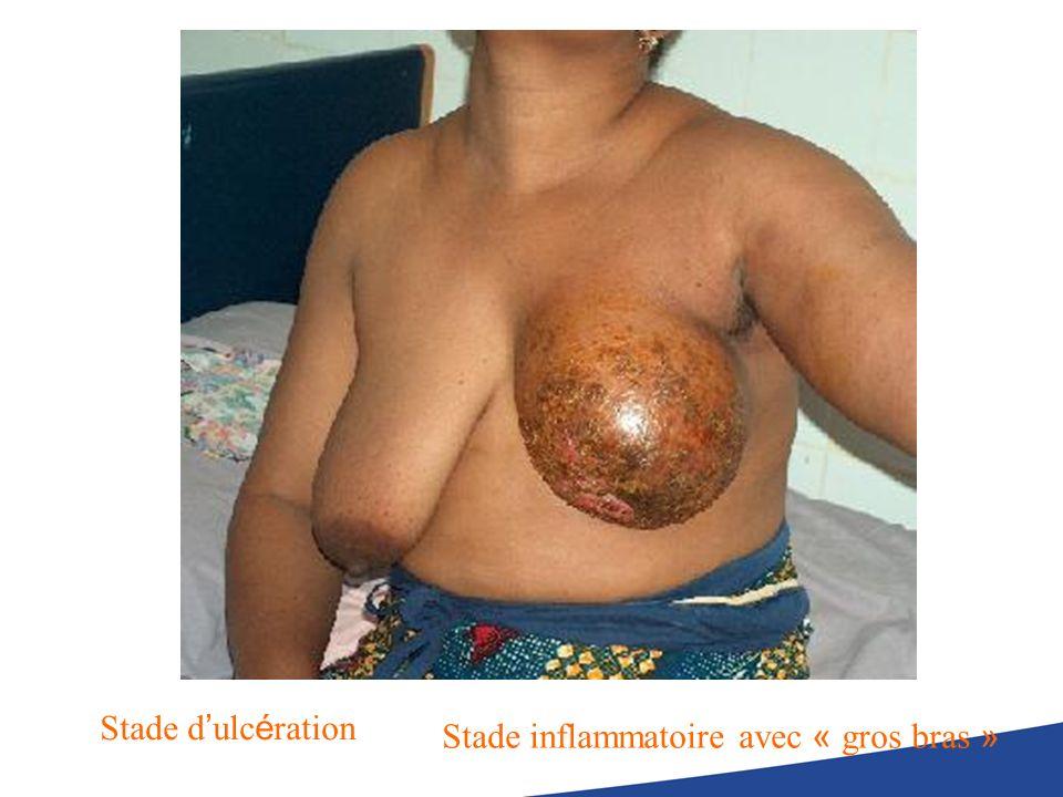 Stade d ulc é ration Stade inflammatoire avec « gros bras »
