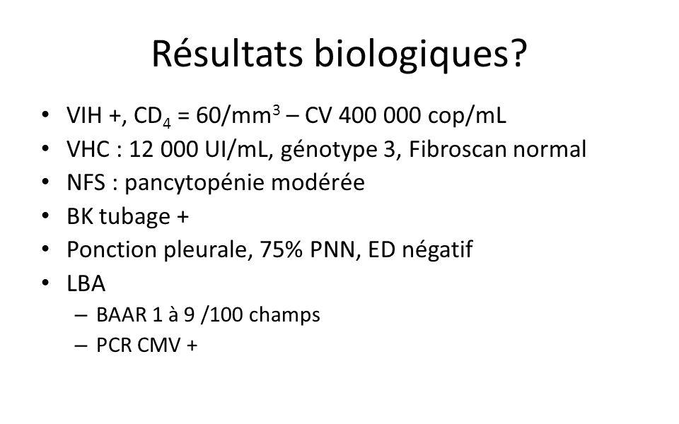 Résultats biologiques.