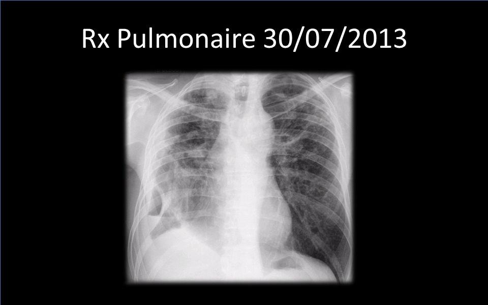 Rx Pulmonaire 30/07/2013