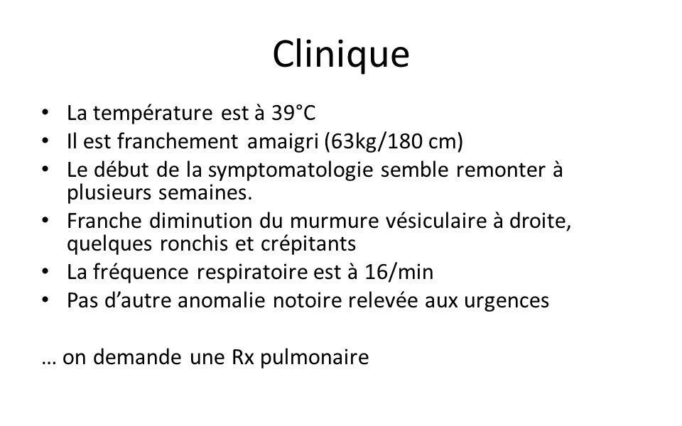 Clinique La température est à 39°C Il est franchement amaigri (63kg/180 cm) Le début de la symptomatologie semble remonter à plusieurs semaines.