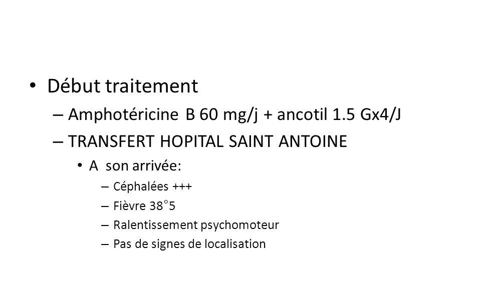 Début traitement – Amphotéricine B 60 mg/j + ancotil 1.5 Gx4/J – TRANSFERT HOPITAL SAINT ANTOINE A son arrivée: – Céphalées +++ – Fièvre 38°5 – Ralentissement psychomoteur – Pas de signes de localisation