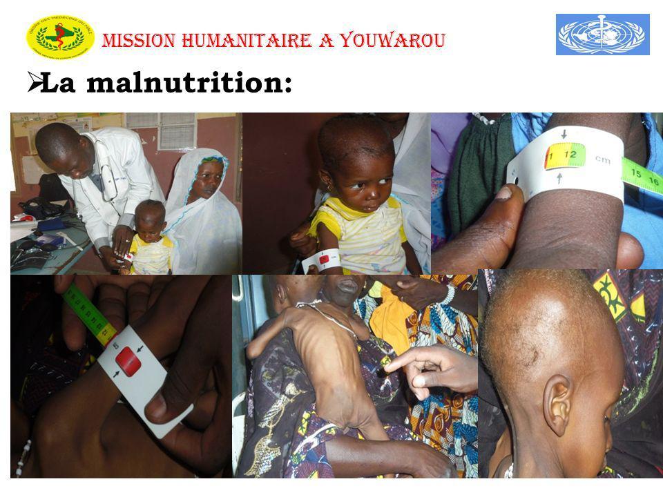 MISSION HUMANITAIRE A YOUWAROU La malnutrition: