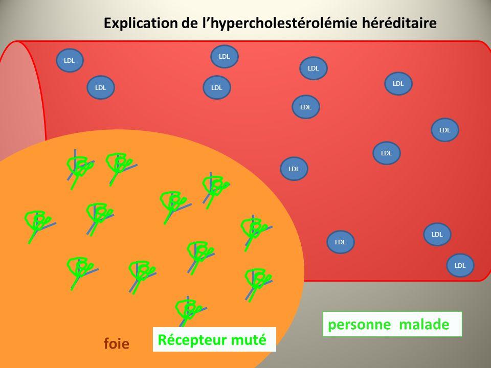 LDL personne malade foie Récepteur LDL Explication de lhypercholestérolémie héréditaire Récepteur muté LDL