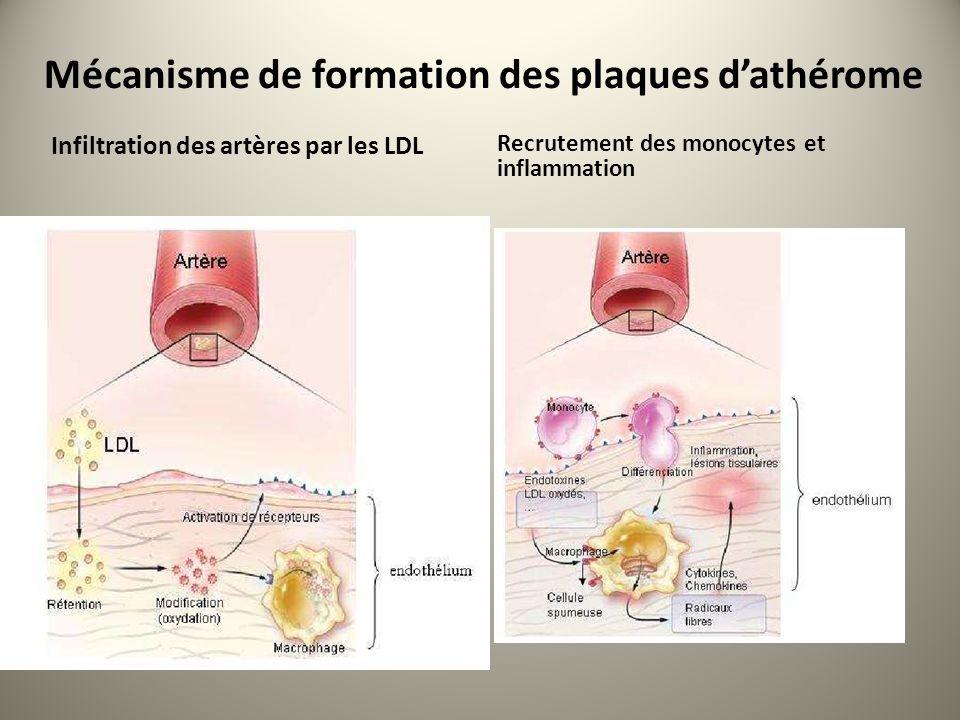 Mécanisme de formation des plaques dathérome Infiltration des artères par les LDL Recrutement des monocytes et inflammation